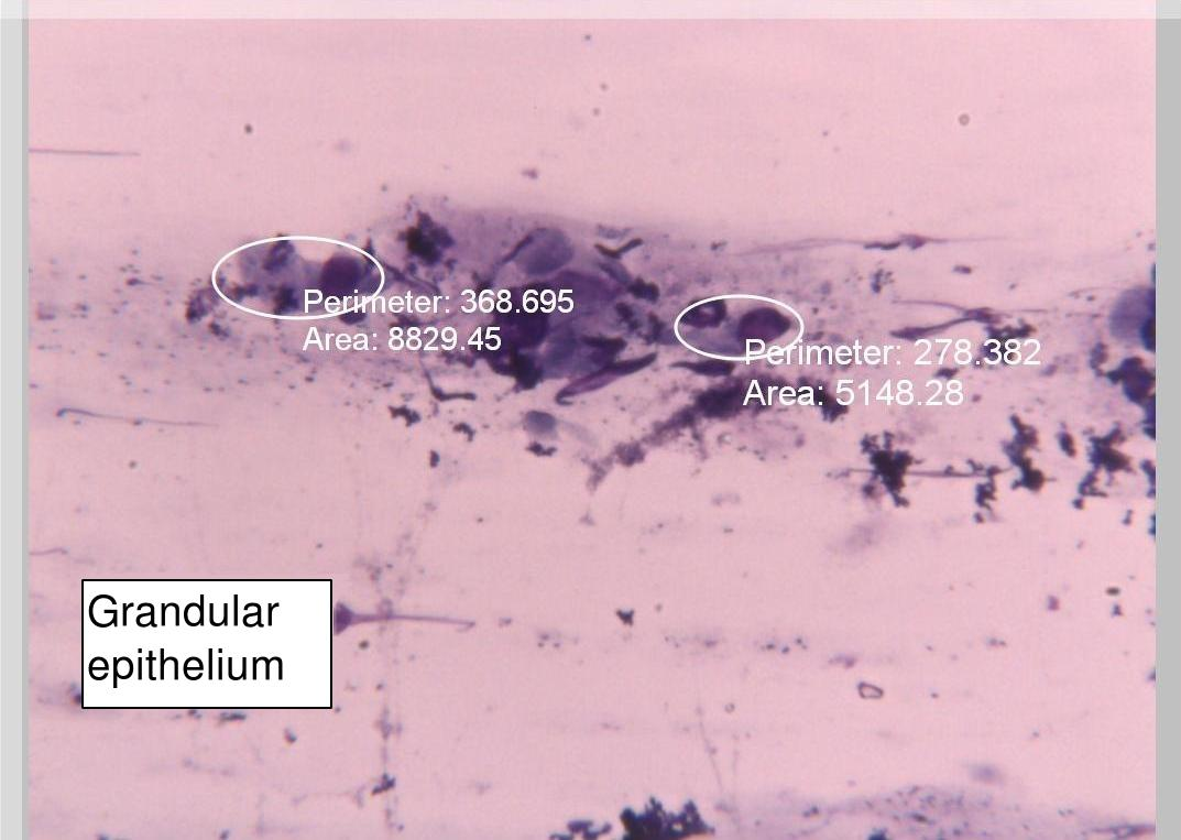 Glandular epithelium